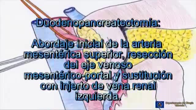 Image of the cover of the video;Duodenopancreatectomia cefàlica amb empelt venós
