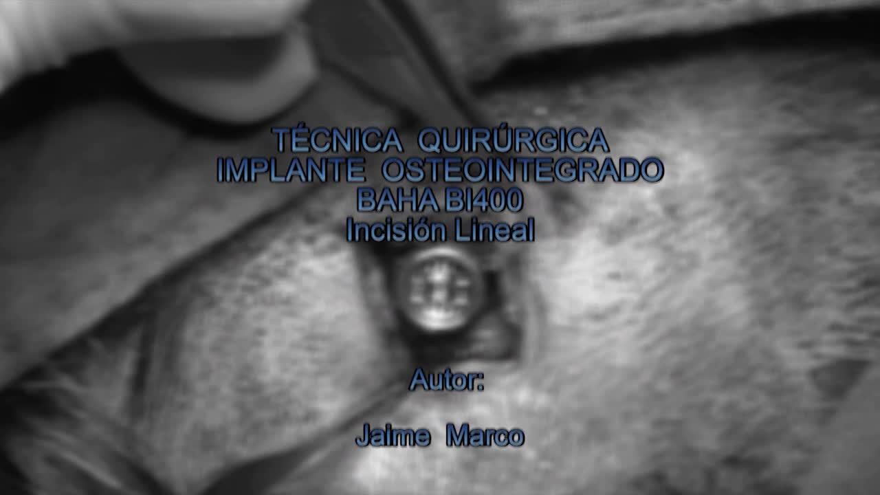 Image of the cover of the video;Implant osteointegrat. Incisió lineal